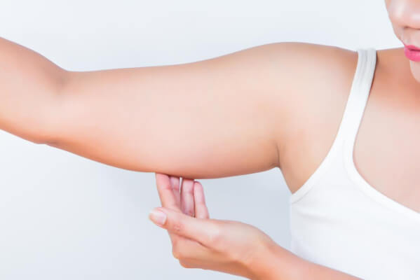 excess fat in arms